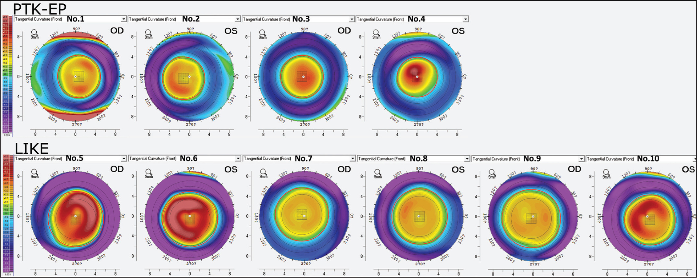 Pentacam (Oculus Optikgeräte) tangential difference maps for the four transepithelial phototherapeutic keratectomy (PTK-EP) cases and femtosecond laser–assisted lenticule intrastromal keratoplasty (LIKE) cases. The perimeter of the optical zone is identified by the red circle. The center of the optical zone is indicated by the black cross and the corneal vertex is indicated by the white dot. OD = right eye; OS = left eye