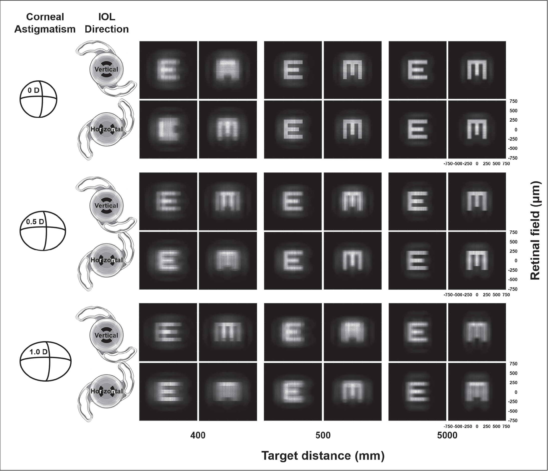 Retinal images of pseudophakia with a Precizon Presbyopic intraocular lens (IOL) (Ophtec BV) in an integrated ray-tracing simulation using Lambertian source E and M targets with various target distances, various with-the-rule corneal astigmatism, and two intraocular lens implantation directions. D = diopters
