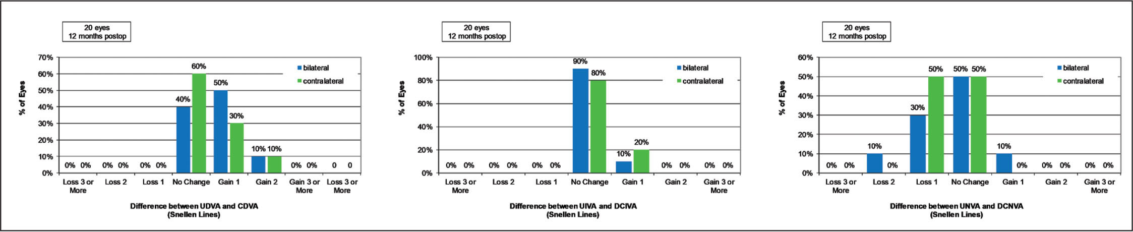 Histogram of difference in Snellen lines between binocular uncorrected and corrected distance visual acuity at far (left, UDVA and CDVA), intermediate (center, UIVA and DCIVA), and near (right, UNVA and DCNVA) for the bilateral and contralateral groups.