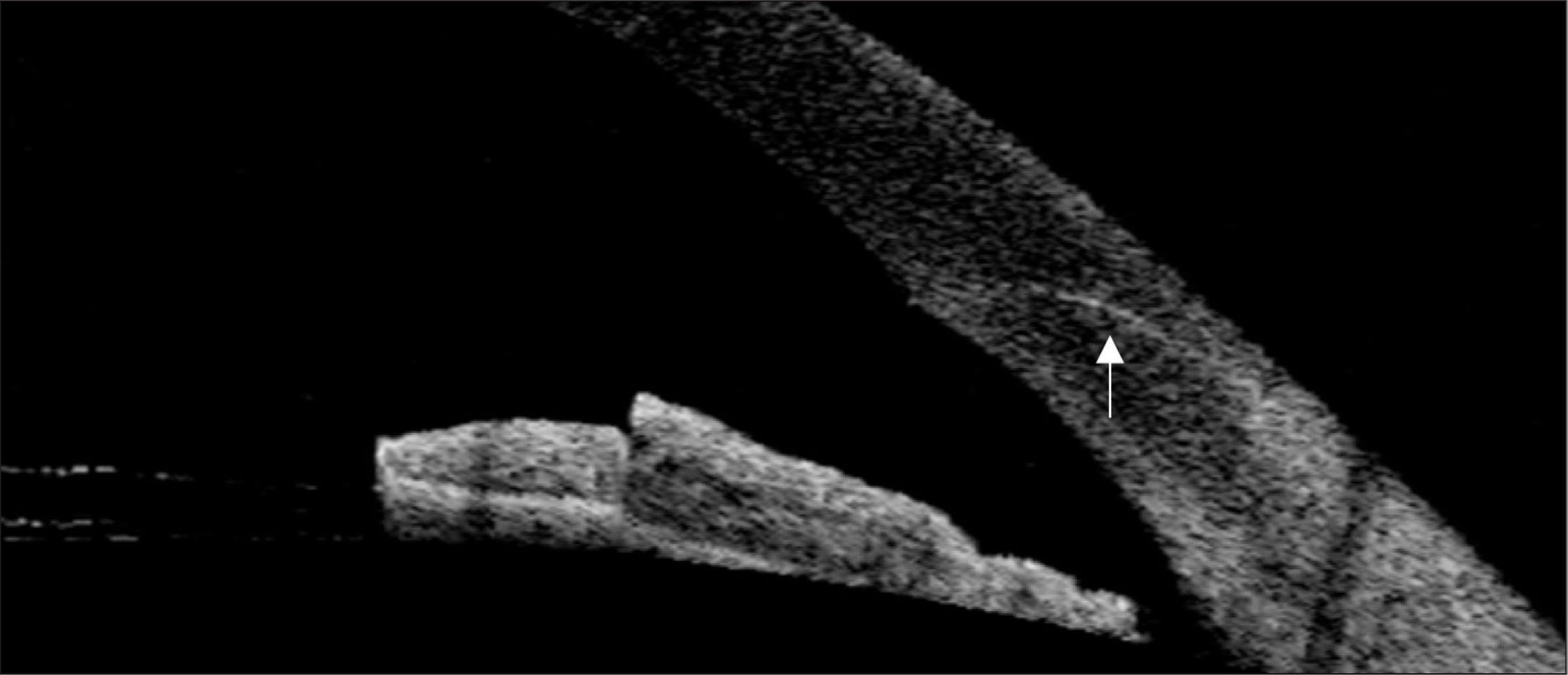 Anterior segment optical coherence tomographic image of the corneal incision site on postoperative day 1. A two-step wound configuration (white arrow) was observed.