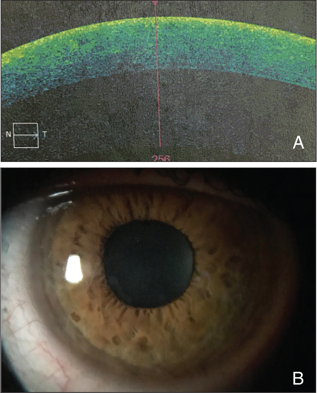 (A) A 3-month postoperative section of the cube mode (4 × 4 mm) of Zeiss Cirrus optical coherence tomography (Carl Zeiss Meditec AG) showing complete resolution of the lesion. (B) Slit-lamp photograph of the cornea at 3 months postoperatively.