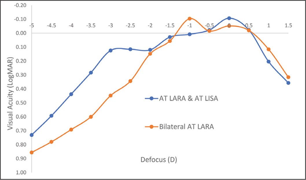 Binocular defocus curves for the study lenses. The AT LARA and AT LISA lenses are manufactured by Carl Zeiss Meditec AG. D = diopters