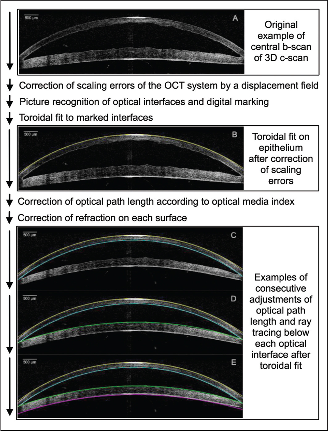 Flowchart diagram showing the consecutive calculations using our Matlab algorithm (The Mathworks) to detect the geometric profile of the cornea to determine the corneal refraction after filler injection. OCT = optical coherence tomography