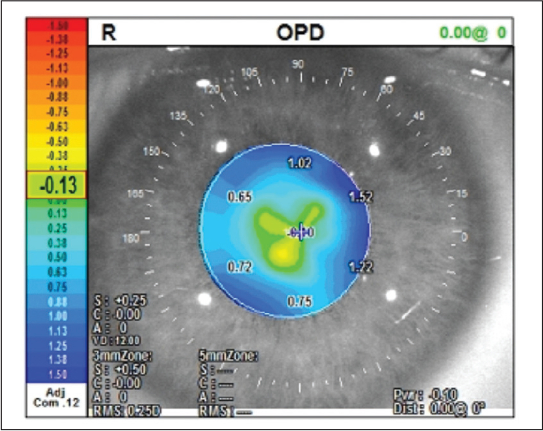OPD scan of the right eye 6 months after the last treatment. Interestingly, no hypermetropic shift was seen after the undersurface photoablation.