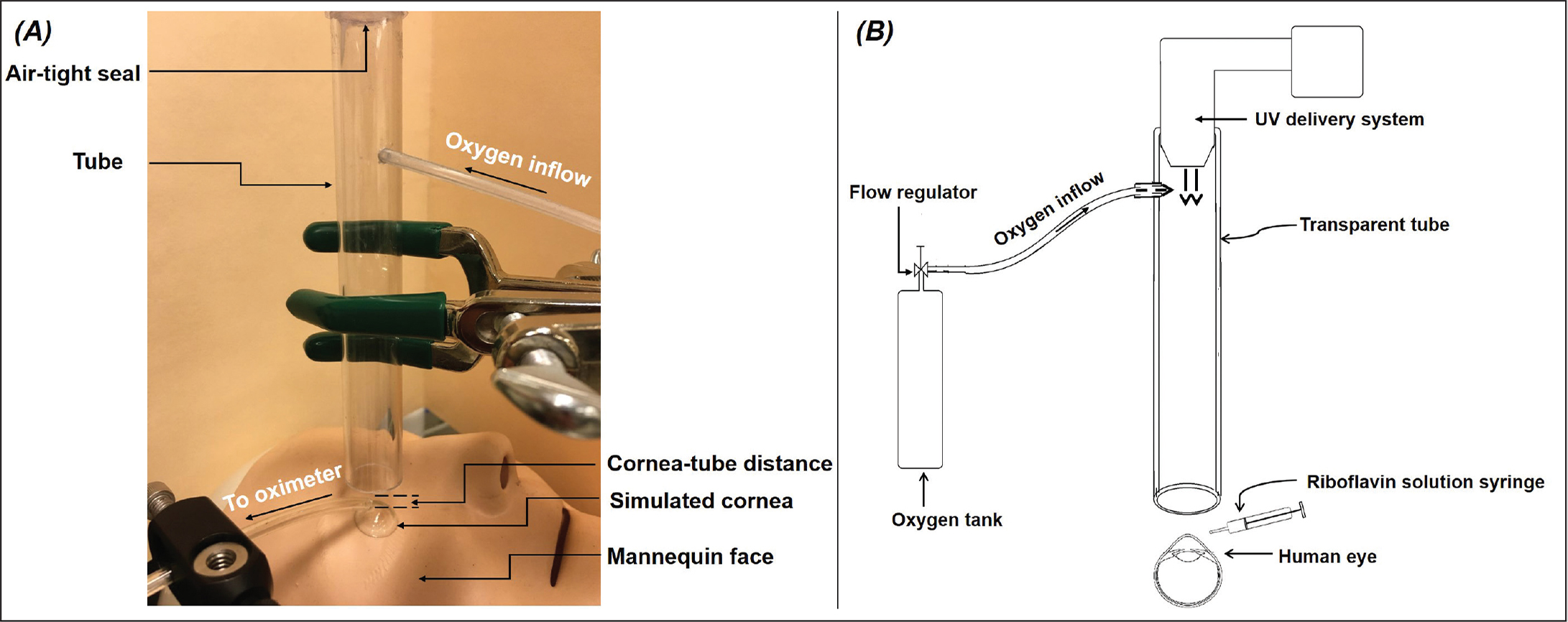 (A) Photograph of the experimental apparatus to measure atmospheric oxygen concentration in a simulated corneal cross-linking (CXL) set-up. Oxygen gas is delivered through a transparent plastic tube to a scleral contact lens that simulates the cornea. The face is simulated by a mannequin. (B) Schematics of the proposed CXL device with coaxial ultraviolet light and oxygen delivery through the transparent tube.