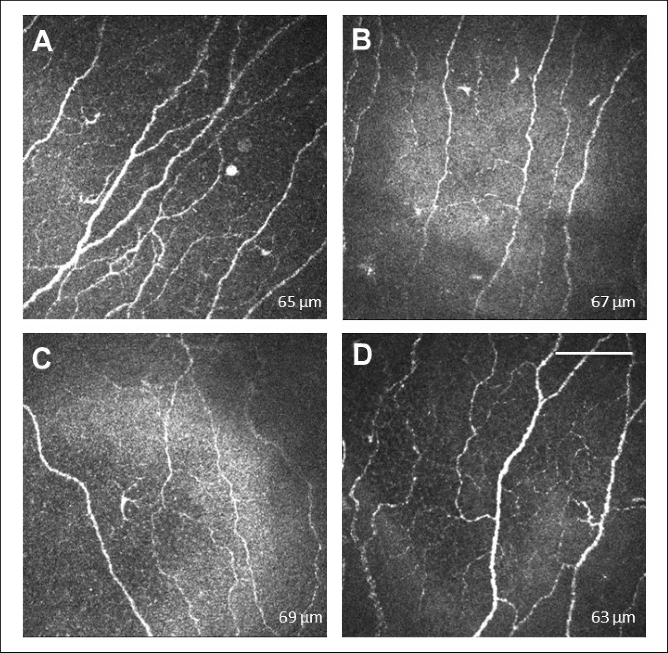 Corneal confocal microscopy images of the subbasal nerve plexus in one patient (A) before surgery and (B) 1, (C) 3, and (D) 6 months after small incision lenticule extraction (SMILE). Subbasal nerve density was low at all visits, and regeneration was incomplete at 6 months. The white bar represents 100 µm. The Heidelberg retina tomography images correspond to an area of 400 × 400 µm.