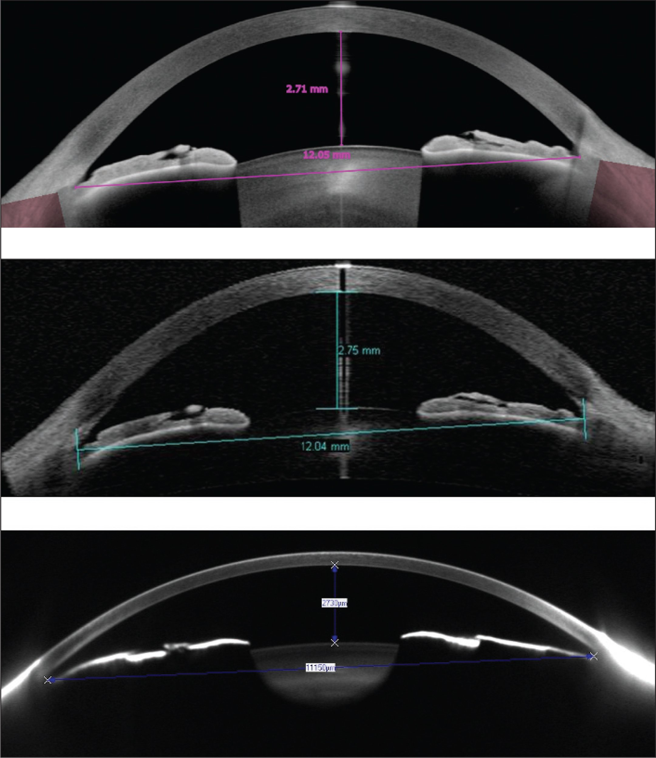 Angle-to-angle and aqueous depth distances at the horizontal meridian measured with the Anterion SS-OCT (Heidelberg Engineering GmbH) (top), Visante TD-OCT (Carl Zeiss Meditec AG) (middle), and Pentacam HR Scheimpflug camera (Oculus Optikgeräte GmbH) (bottom).