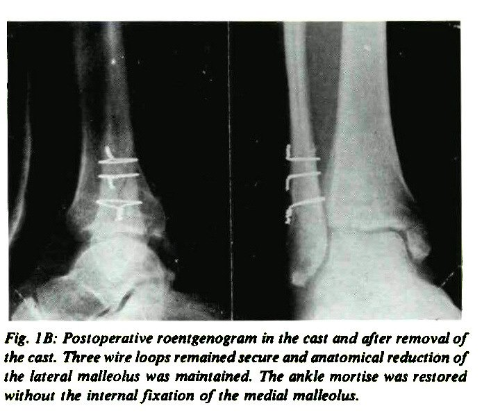 Cerclage Of The Lateral Malleolus In Displaced Fractures Of The Ankle