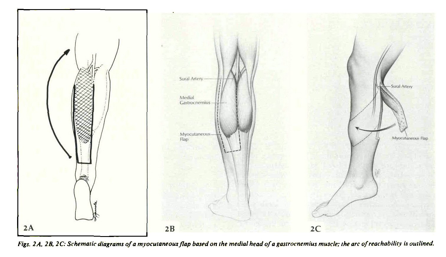 LOWER EXTREMITY RECONSTRUCTION USING MYOCUTANEOUS FLAPS