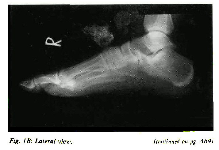 Fig. 1B: Lateral view.