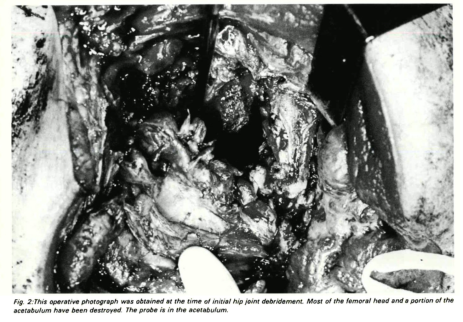 Fig. 2:This operative photograph was obtained at the time of initial hip joint debridement. Most of the femora/ head and a portion of the acetabulum have been destroyed. The probe is in the acetabufum.
