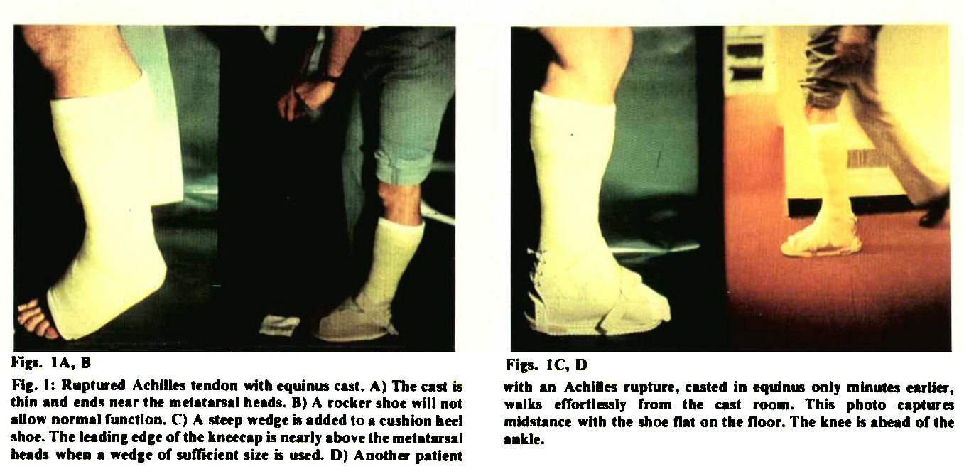 high performance activity with below knee cast treatment part i