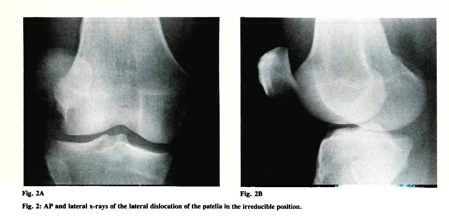 Fig. 2: AP and lateral x-rays of the lateral dislocation of the patella in the irreducible position.