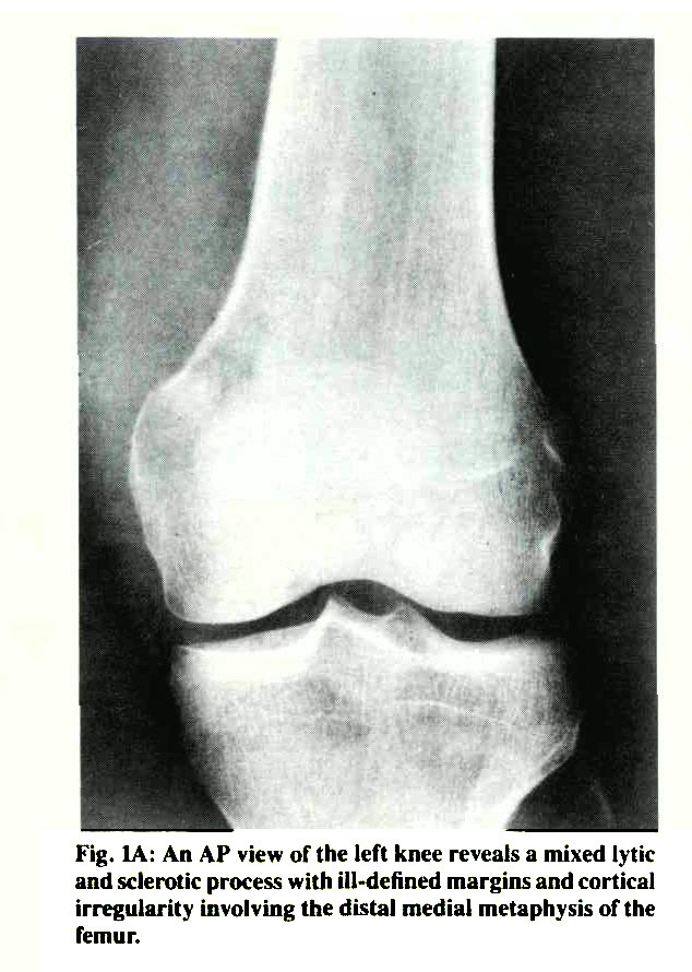 Fig. IA: An AP view of the left knee reveals a mixed lytic and sclerotic process with ill-defined margins and cortical irregularity involving the distal medial metaphysis of the femur.