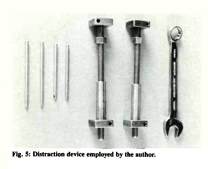 Fig. 5: Distraction device employed by the author.
