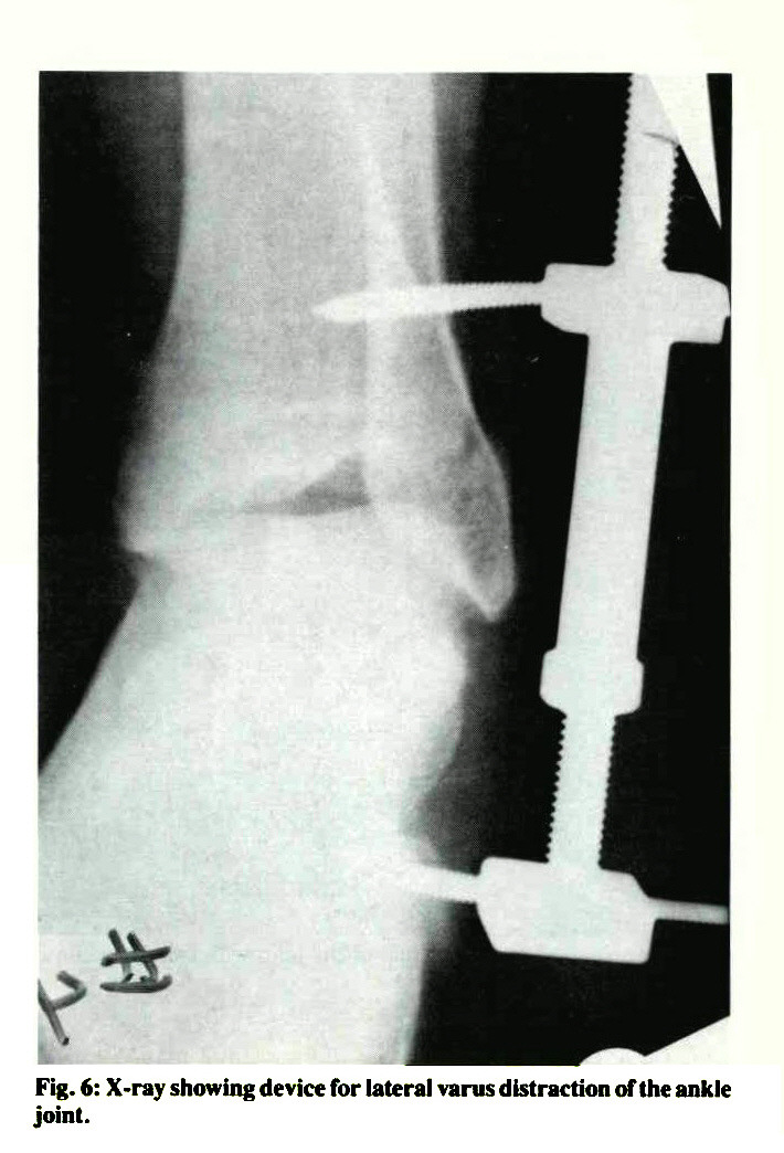 Fig. 6: X-ray showing device for lateral varus distraction of the ankle joint.
