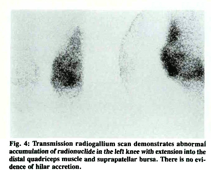Fig. 4: Transmission radiogallium scan demonstrates abnormal accumulation of radionuclide ia the left knee with extension into the distal quadriceps muscle and suprapatellar bursa. There is no evidence of hilar accretion.
