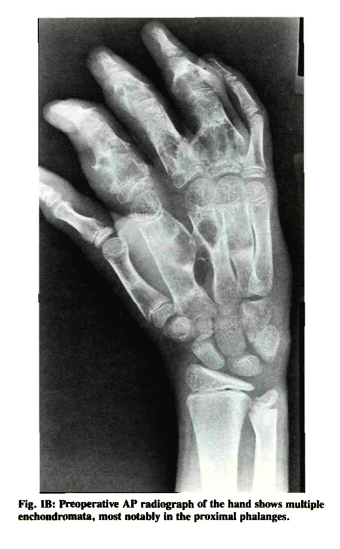 Fig. IB: Preoperative AP radiograph of the hand shows multiple enchondromata, most notably in the proximal phalanges.
