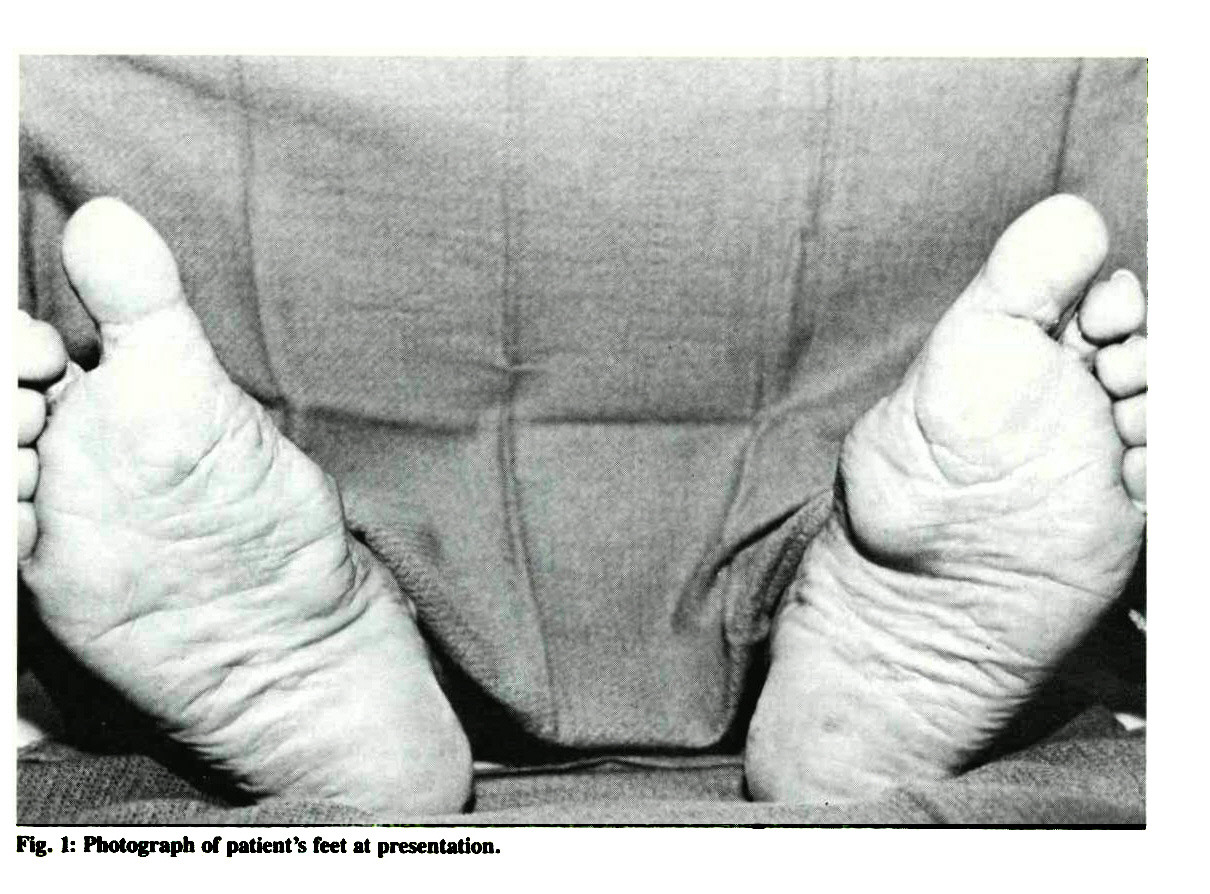 Fig. 1: Photograph of patient's feet at presentation.