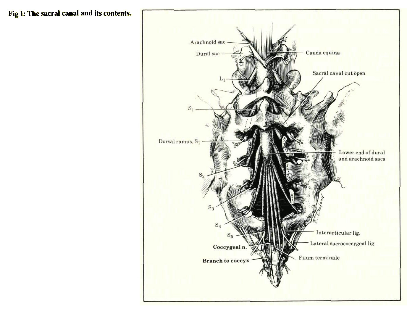 Fig 1: The sacral canal and its contents.