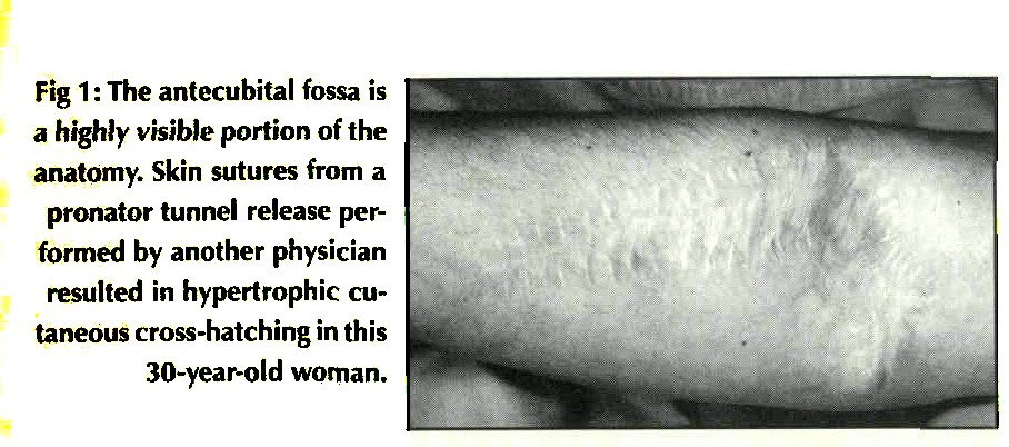 Fig 1: The antecubital fossa is a highly visible portion of the anatomy. Skin sutures from a pronator tunnel release performed by another physician resulted in hypertrophic cutaneous cross-hatching in this 30-year-old woman.
