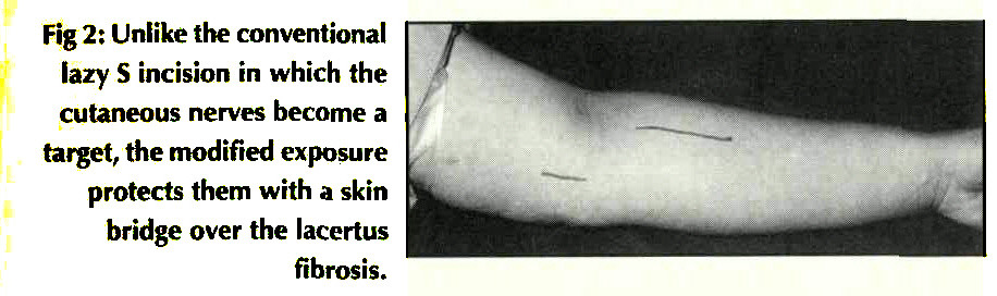 Fig 2: Unlike the conventional lazy S incision in which the cutaneous nerves become a target, the modified exposure protects them with a skin bridge over the lacertus fibrosis.