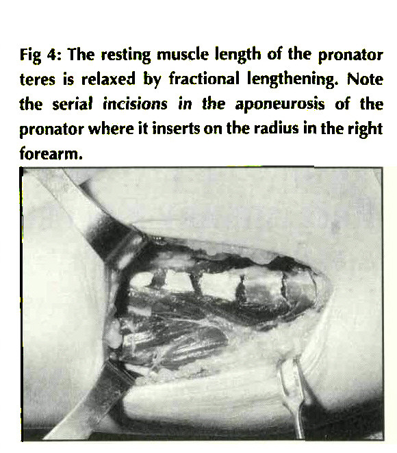 Fig 4: The resting muscle length of the pronator teres is relaxed by fractional lengthening. Note the serial incisions in the aponeurosis of the pronator where it inserts on the radius in the right forearm.
