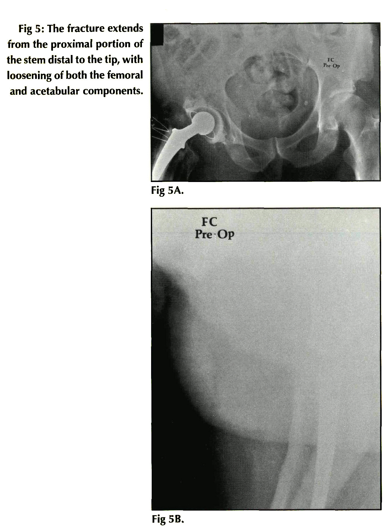 FEMORAL FRACTURES ASSOCIATED WITH LOOSE CEMENTED TOTAL HIP ARTHROPLASTY
