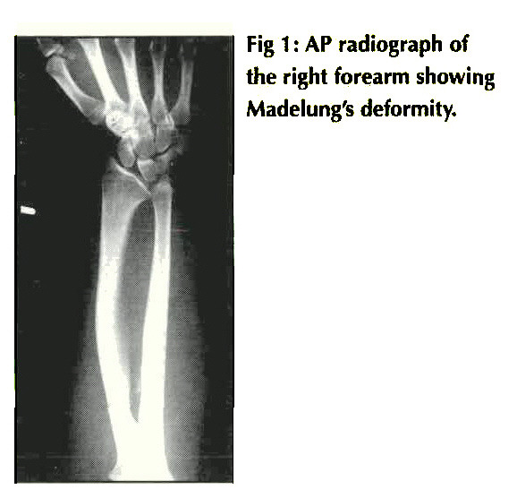 Fig 1 : AP radiograph of the right forearm showing Madelung's deformity.