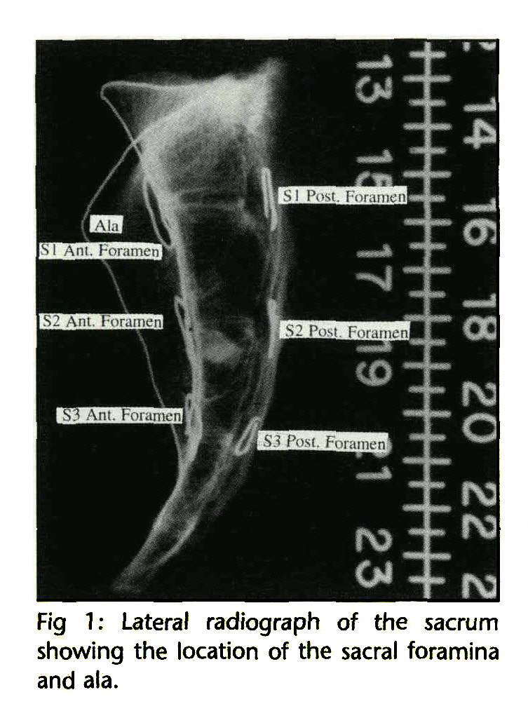 Location of the Sacral Pedicle, Foramina, and Ala on the Lateral ...