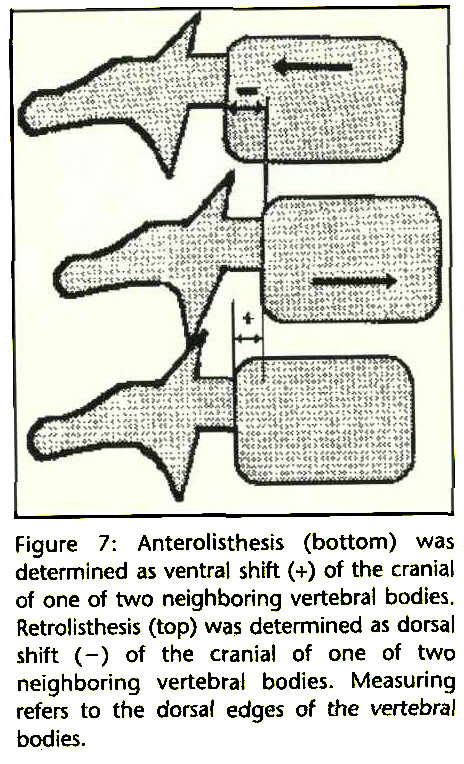 """cervical lordosis with retrolisthesis The term anterolisthesis is derived from """"ante"""", a latin word that means 'front' and """"listhesis"""",  ( anterolisthesis cervical spine or spondylosis) or the vertebra mainly the c4 and c5 ( anterolisthesis c4 c5)  it could be due."""
