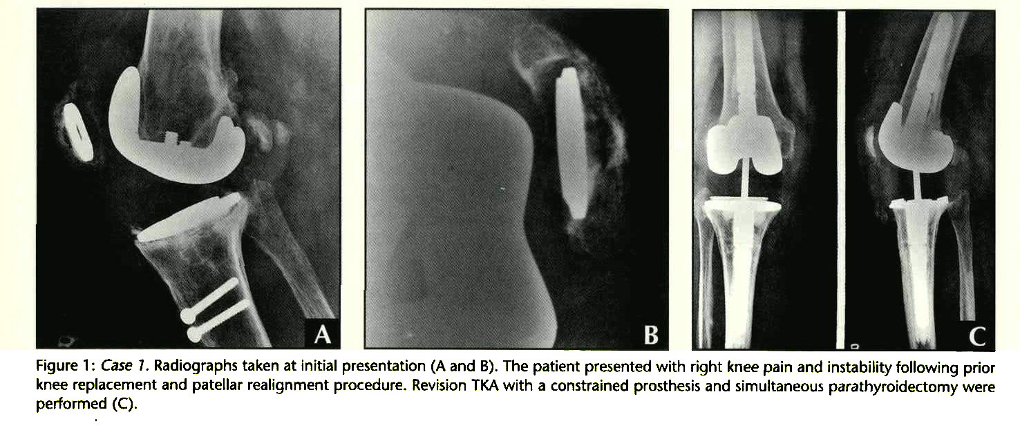 Figure 1 : Case 7. Radiographs taken at initial presentation (A and B). The patient presented with right knee pain and instability following prior knee replacement and patellar realignment procedure. Revision TKA with a constrained prosthesis and simultaneous parathyroidectomy were performed (C).