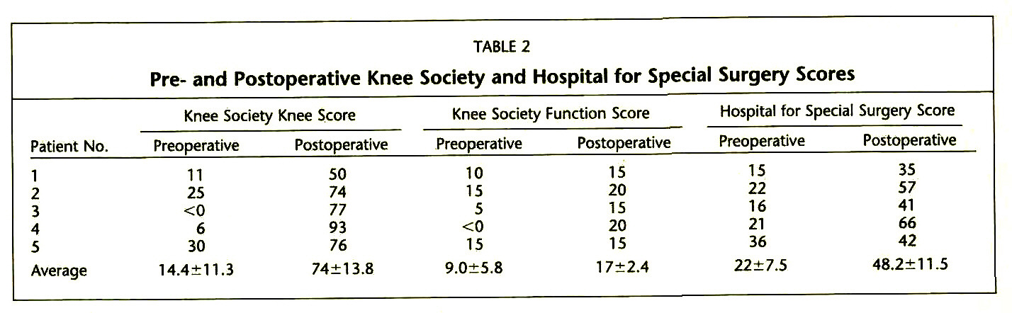 The Effects Of Severe Femoral Bone Loss On The Flexion
