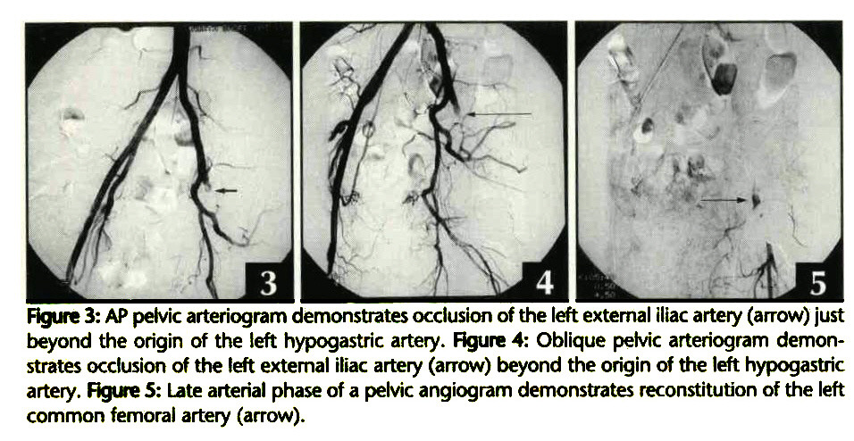 Iliac Artery Thrombosis Secondary to a Giant Synovial Cyst
