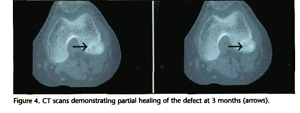 Figure 4. CT scans demonstrating partial healing of the defect at 3 months (arrows).