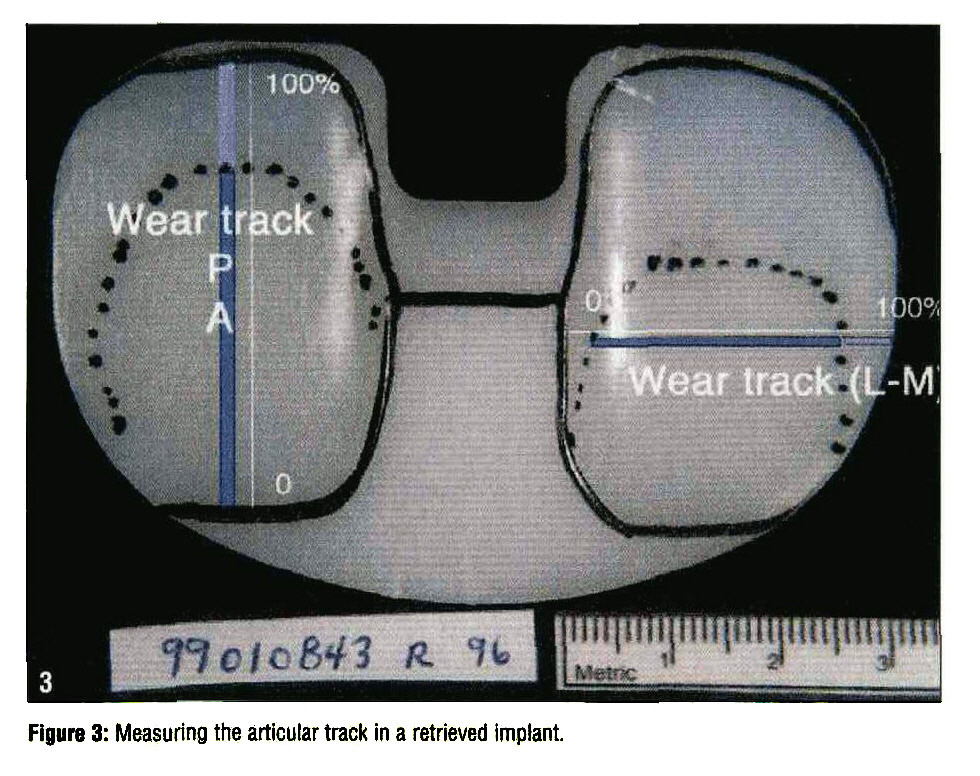 Figure 3: Measuring the articular track in a retrieved implant.