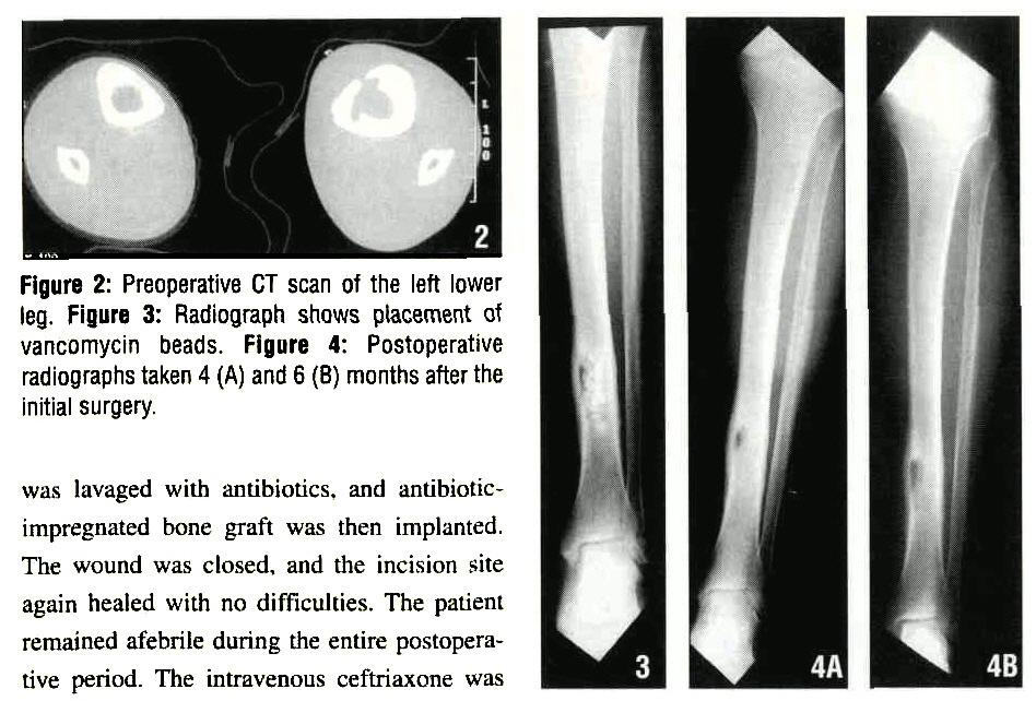 Figure 2: Preoperative CT scan of the left lower leg. Figure 3: Radiograph shows placement of vancomycin beads. Figure 4: Postoperative radiographs taken 4 (A) and 6 (B) months after the initial surgery.