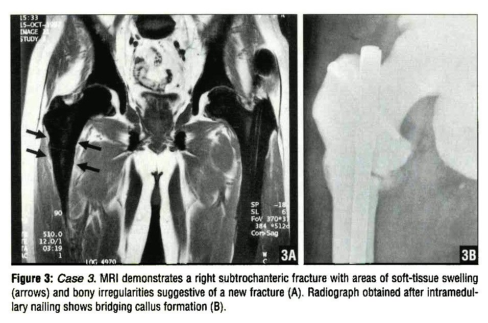 Figure 3: Case 3. MRI demonstrates a right subtrochanteric fracture with areas of soft-tissue swelling (arrows) and bony irregularities suggestive of a new fracture (A). Radiograph obtained after intramedullary nailing shows bridging callus formation (B).