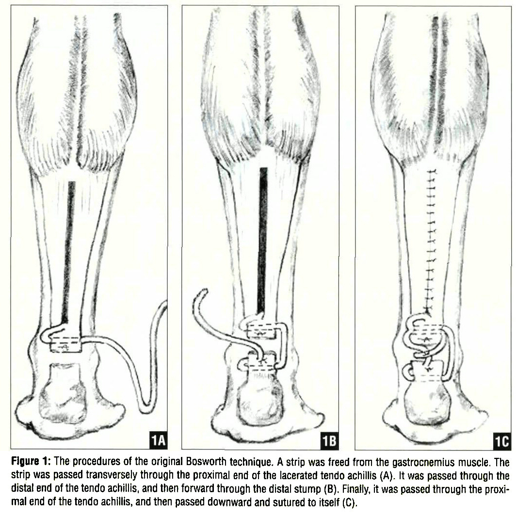 Achilles tendon rupture physical therapy - Figure 1 The Procedures Of The Original Bosworth Technique A Strip Was Freed From