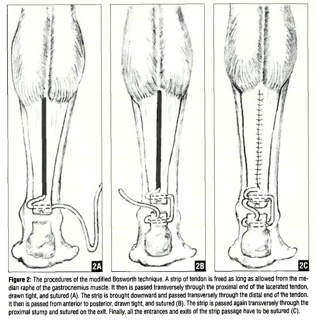 Achilles tendon rupture physical therapy - Figure 2 The Procedures Of The Modified Bosworth Technique A Strip Of Tendon Is