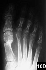 Figure 10D: Postoperative radiograph of a 52-year-old patient with a 22° intermetatarsal angle