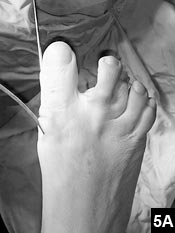 Figure 5A: A bent, grooved probe is placed through the proximal incision in the proximal metatarsal bone fragment