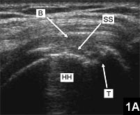 Figure 1A: The bursa, humeral head, and trough from previous repair are seen