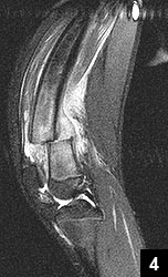 Figure 4: Sagital T2-weighted MRI of the right distal femur illustrating the displaced right femoral stress fracture