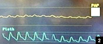 Figure 2: Waveform demonstrating direct correlation with heart rate waveforms from the pulse oximeter plethysmograph tracing