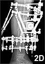 Figure 2D: Lateral postoperative radiographs