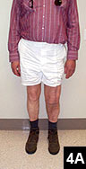 Figure 4A: One-year follow-up standing view photograph shows good knee alignment (A) and side view photograph shows good knee flexion (B)