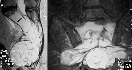 Figure 5A: Sagittal (left) and coronal (right) T2-weighted MRIs of the pelvis