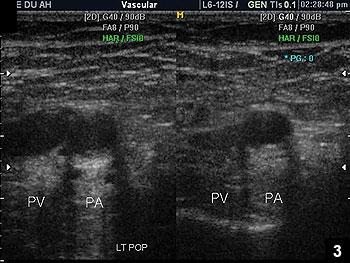 Figure 3: Color Doppler showing normal blood flow and pulsation of popliteal artery