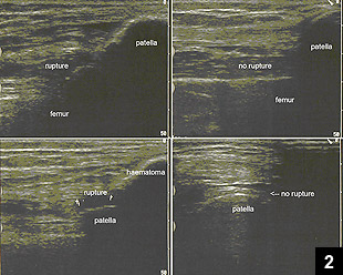 Figure 2: Ultrasound of a ruptured and a nonruptured quadriceps tendon
